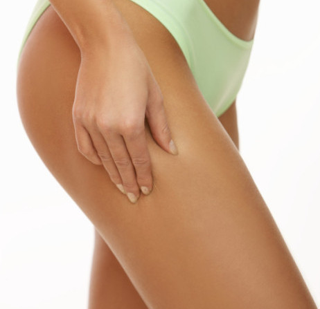 Spider Veins treated at 207 Laser - formerly Maine Laser Clinic