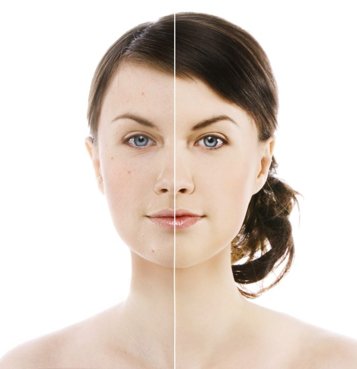 Rosacea Treat at 207 Laser - formerly Maine Laser Clinic