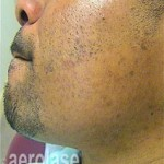 PFB treatment at 207 Laser - formerly Maine Laser Clinic