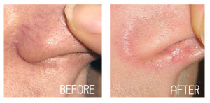 Xeo treatment at 207 Laser - formerly Maine Laser Clinic