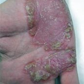 Psoriasis before picture
