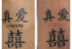 Tattoo removal Before and after photo