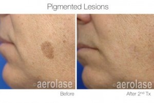 Pigmented lesion before and after