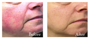 Rosacea pre-and-post treatment