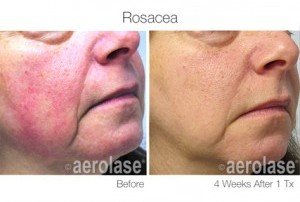 Rosacea before and after treatment