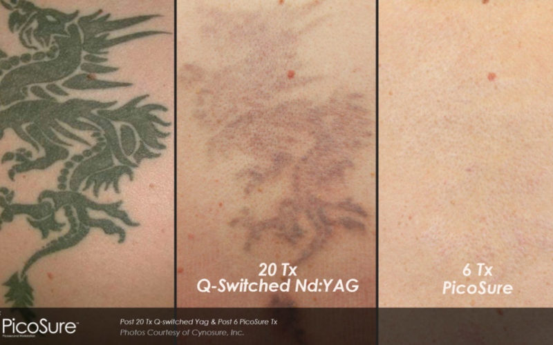 Tattoo removal cost – How much does it cost to remove a tattoo?
