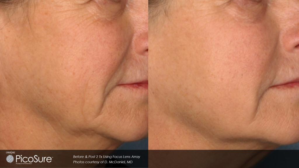 Skin Revitalization