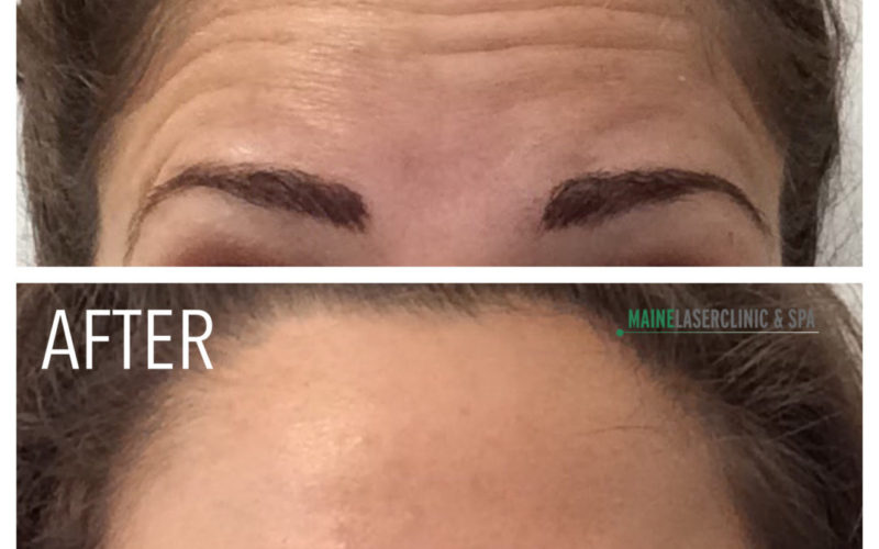 What kind of results can I expect from Botox®?