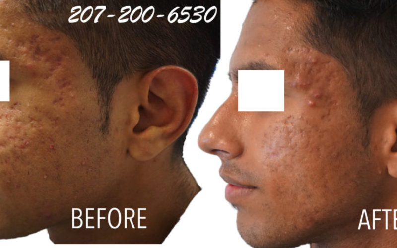 Microneedling for Acne Scarring