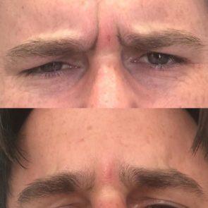 Male botox